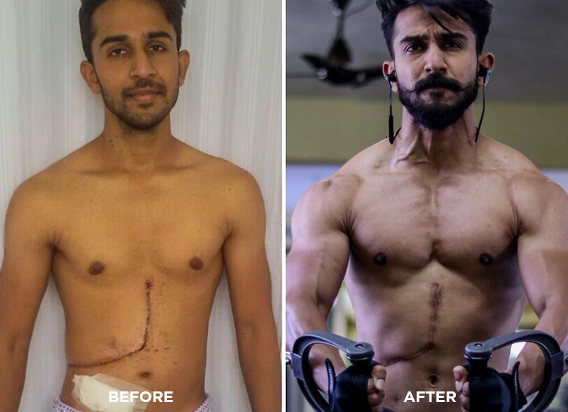 From a Liver Donor to a Fitness Enthusiast – Abhishek Deshmukh